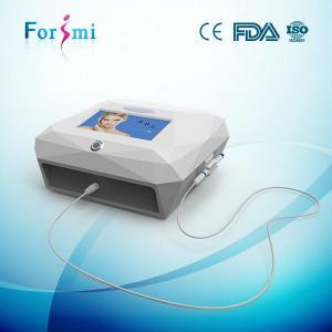 laser treatment for broken veins beautful machine